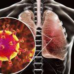 Число заразившихся коронавирусом в мире за сутки выросло на 48,3 тысячи человек